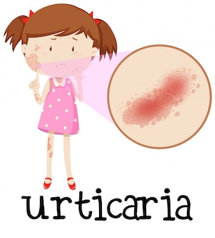 Chica joven con urticaria