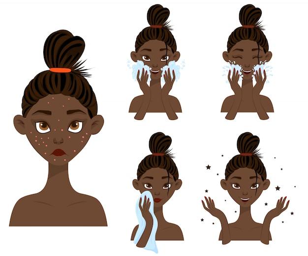 Chica de piel oscura antes y después del tratamiento del acné.