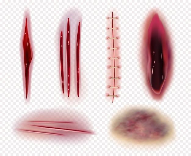 Cicatrices realistas. corta heridas contusiones hematomas sangre puntadas colección de plantillas. ilustración lesión traumatismo, coloración de laceración grave