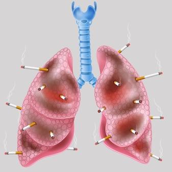 Cigarrillo en el pulmón