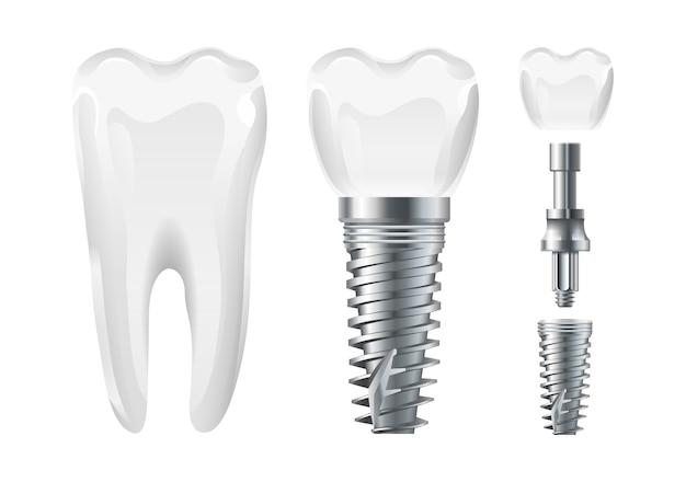 Cirugía dental. implante cortado y diente sano. implante dental y corona de vector realista. elementos de estomatología diente, cuidado dental e ilustración de tratamiento.