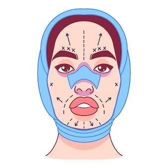 Cirugía plástica, cambio de apariencia, línea de incisiones en el rostro femenino. ilustración vectorial