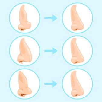 Cirugía de rinoplastia de dibujos animados. rinoplastia antes y después, resultado de cirugía plástica de nariz
