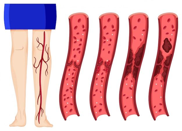 Coágulo de sangre en piernas humanas.