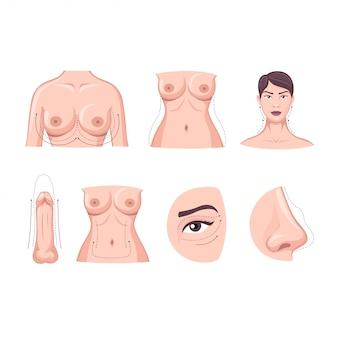 Colección de dibujos animados de cirugía plástica parte del cuerpo aislada