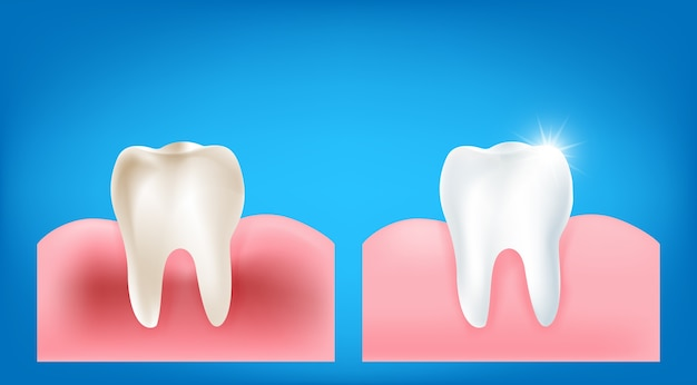 Colección de dientes sucios y goma de mascar con limpia