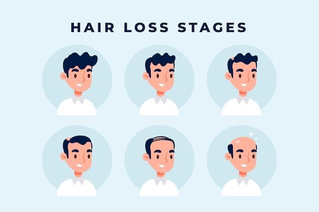 Colección de etapas de caída del cabello dibujadas a mano