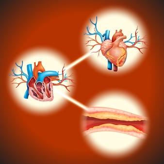 Colesteral en corazón humano