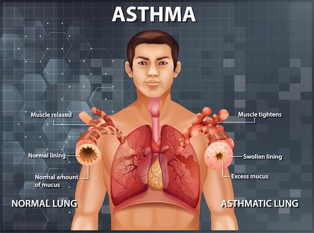 Comparación de pulmón sano y pulmón asmático
