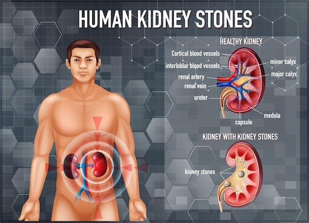Comparación de riñón y riñón sanos con cálculos