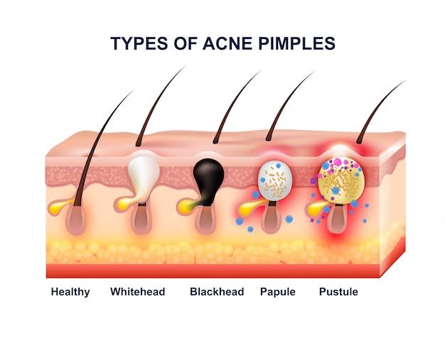 Composición de la anatomía del acné de la piel
