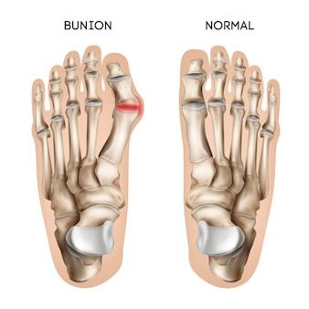 Composición realista del pie de juanete con vistas de pisadas humanas normales y dañadas