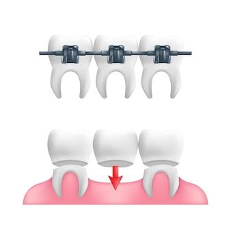 Concepto de dentadura postiza: dientes sanos con un puente dental fijo y aparatos ortopédicos encima.