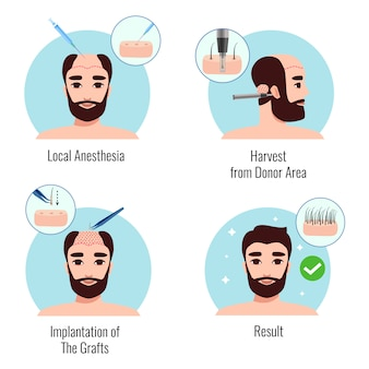 Concepto de diseño con hombre barbudo en las etapas del procedimiento de trasplante de cabello aislado