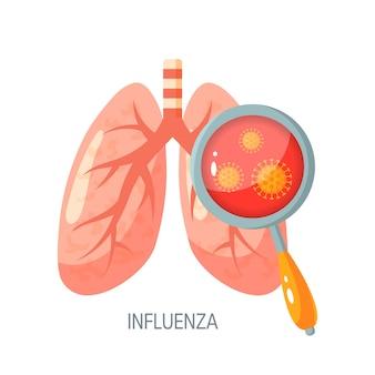 Concepto de enfermedad pulmonar por influenza. para atlas médicos, artículos, infografías.