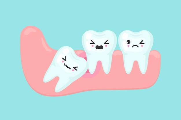 Concepto de estomatología dental de problemas de muelas del juicio. diente impactado dentro debajo de la encía inflamada