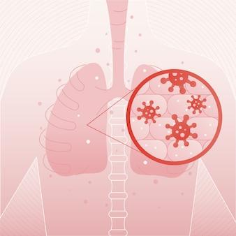 Concepto de neumonía por coronavirus