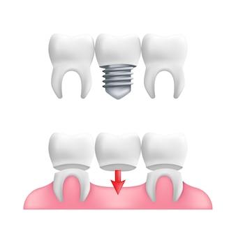 Concepto de prótesis: dientes sanos con puentes dentales fijos e implantes.