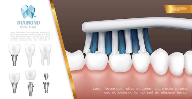 Concepto de salud dental realista con proceso de limpieza o cepillado de dientes e implantes dentales