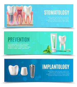 Conjunto de 3 banners horizontales de implantes dentales