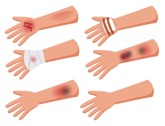 Conjunto de brazos heridos.