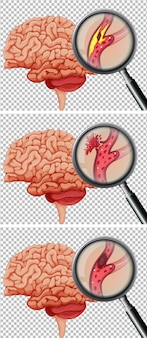 Un conjunto de cerebro humano con accidente cerebrovascular