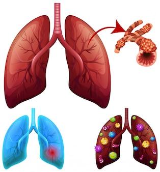 Un conjunto de condiciones pulmonares