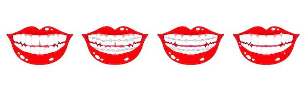 Conjunto de dibujos animados de bocas sonrientes con etapas de alineación de los dientes utilizando aparatos de ortodoncia metálicos sobre un fondo blanco