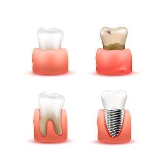 Conjunto de dientes en las encías en blanco