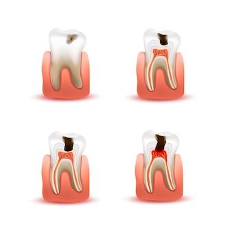 Conjunto de dientes humanos con cuatro etapas de caries diferentes, gráfico infográfico en blanco