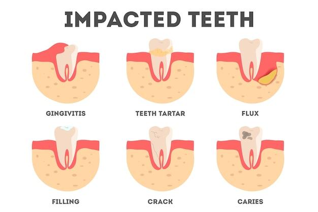 Conjunto de diferentes impactos en los dientes humanos. enfermedades dentales y bucales. idea de salud y tratamiento médico. ilustración