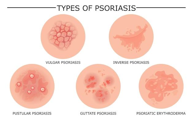 Conjunto de diferentes tipos de psoriasis.