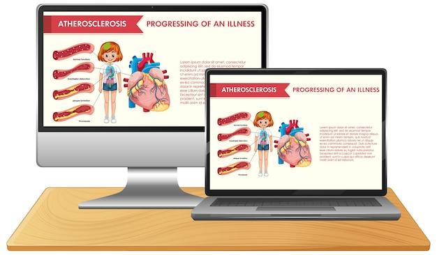 Conjunto de dispositivos electrónicos con infografía científica en el escritorio de la pantalla