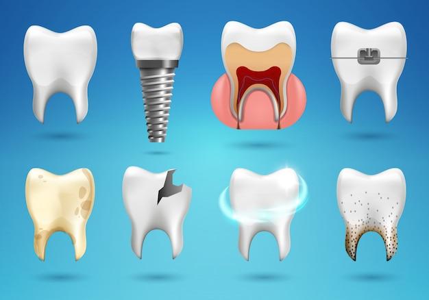 Conjunto grande de dientes en estilo realista 3d. diente sano realista, implante dental, caries, cálculo, frenillos.