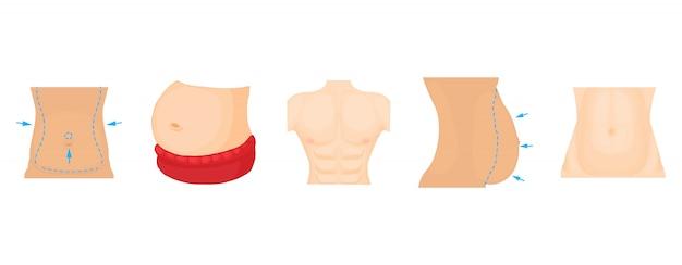 Conjunto de iconos de abdomen