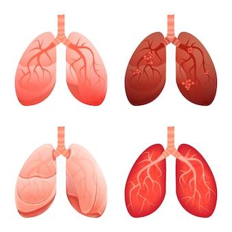 Conjunto de iconos de pulmón, estilo de dibujos animados