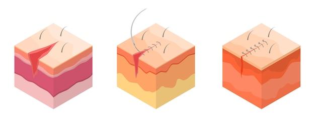 Conjunto de iconos de sutura quirúrgica, estilo isométrico.
