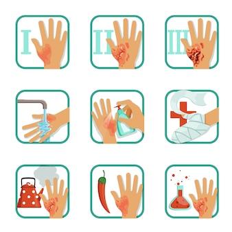 Conjunto de quemaduras de grado, tratamiento de quemaduras y clasificación ilustraciones sobre un fondo blanco