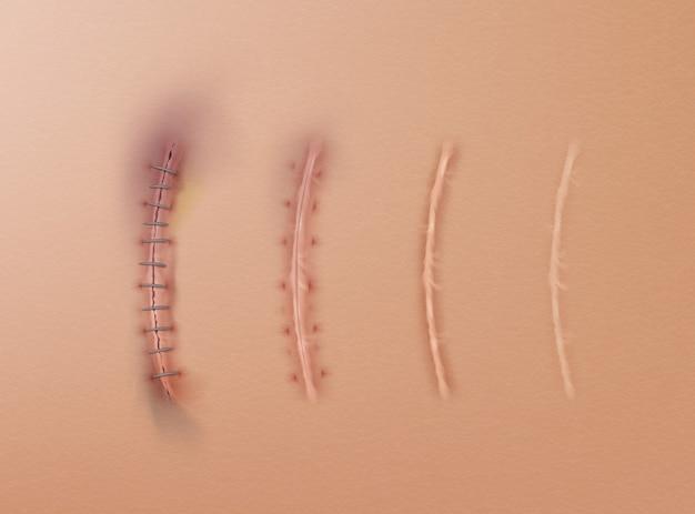 Conjunto de suturas quirúrgicas y cicatrices en heridas cosidas en la piel en diferentes etapas de curación