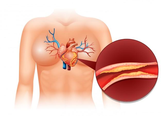 Corazón colesteral en humanos