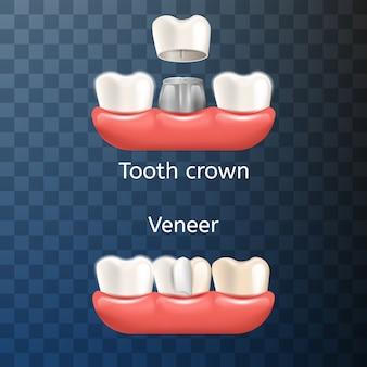 Corona de diente dental de ilustración realista, venner