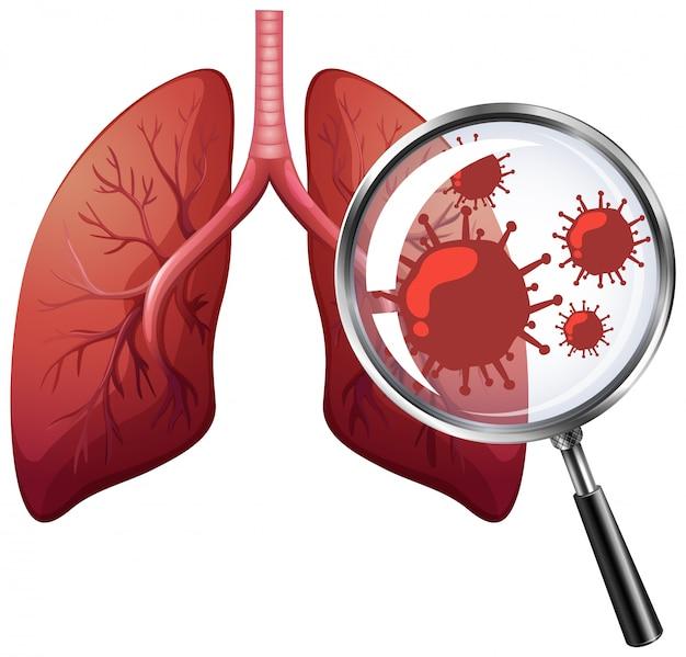 Coronavirus y pulmones humanos sobre fondo blanco.