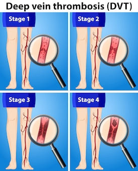 Cuatro etapas de trombosis venosa profunda