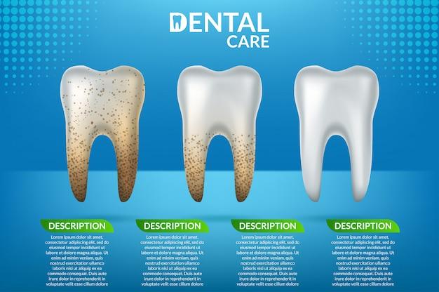 Cuidado dental y dientes