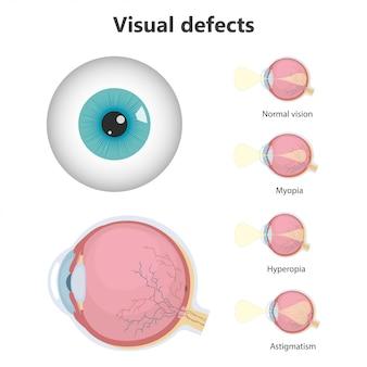 Defectos oculares, visión normal, hipermetropía, miopía.