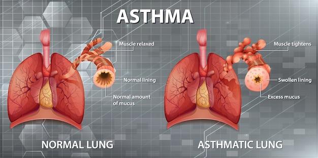 Diagrama de asma de anatomía humana