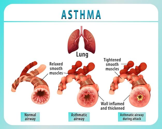 Diagrama de asma bronquial con vía aérea normal y vía aérea asmática
