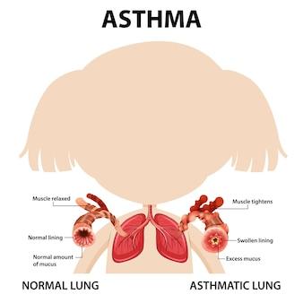 Diagrama de asma con pulmón normal y pulmón asmático