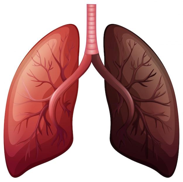 Diagrama de cáncer de pulmón a gran escala