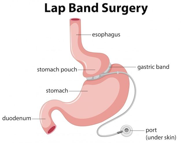 Diagrama de cirugía de banda gástrica